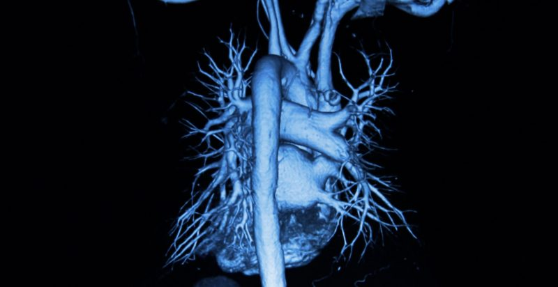 heart as seen in CAT scan