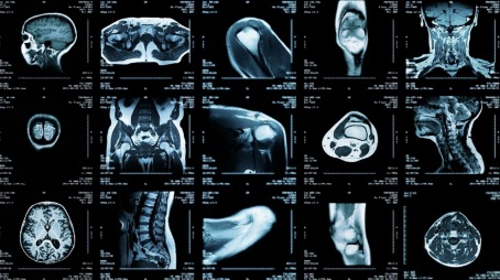 MRI scans of the body at Premier Diagnostic Imaging in Cookeville, TN